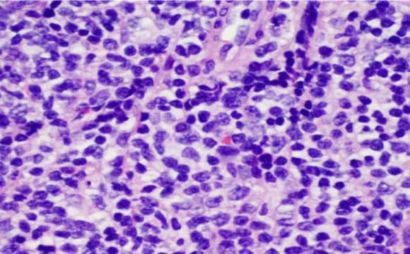 OCULAR MANTLE CELL LYMPHOMA