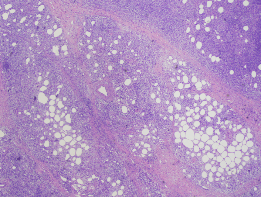 SUBCUTANEOUS PANNICULITIS-LIKE T-CELL LYMPHOMA