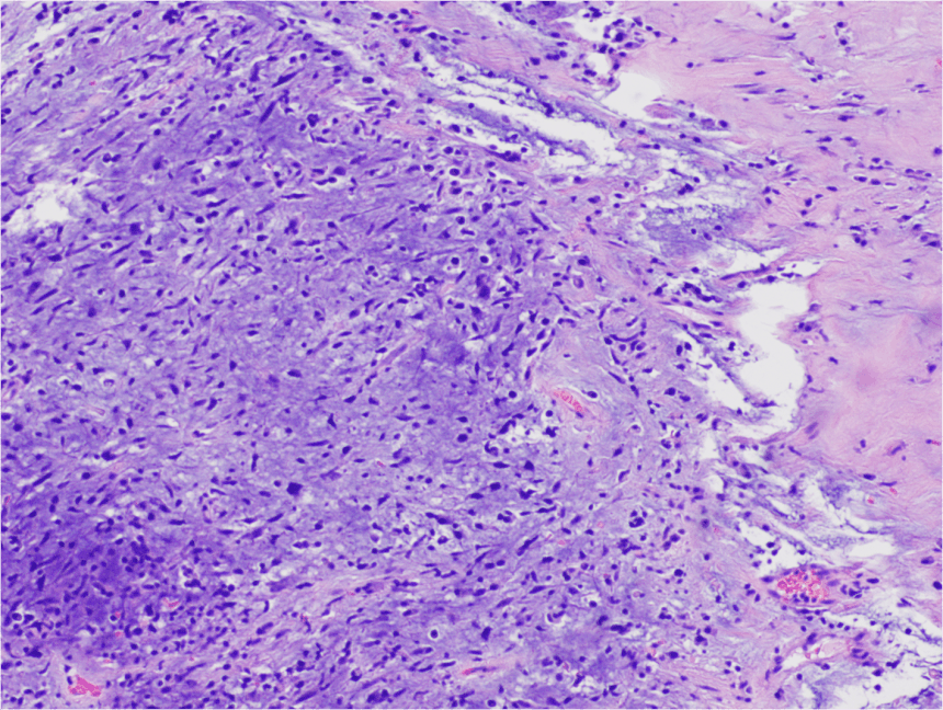 EMBRYONAL RHABDOSARCOMA